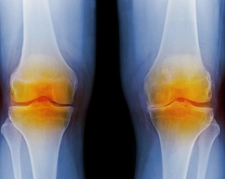 老年人怎么预防膝关节炎