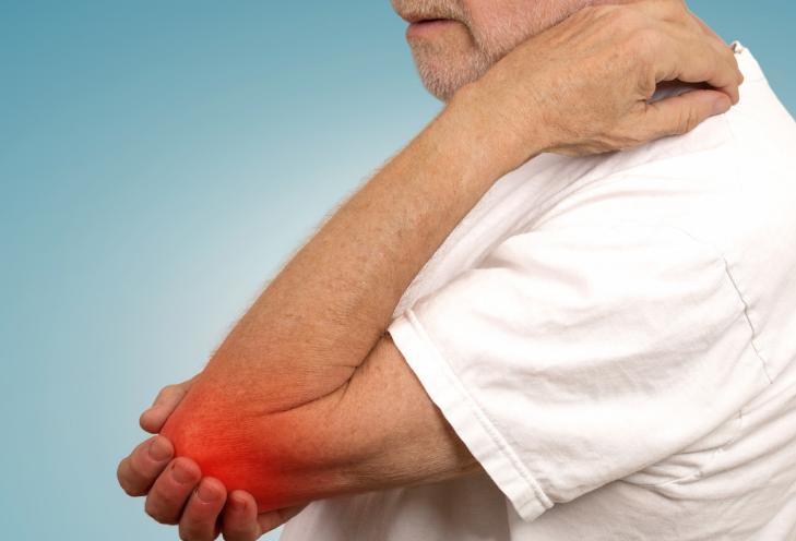 关节炎的症状有什么