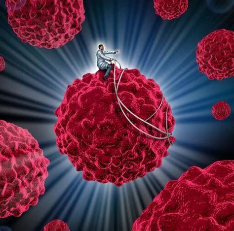 用北联NK免疫细胞治肾癌怎么样