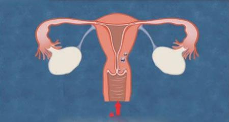 女性卵巢早衰预防方法